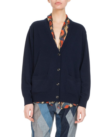 Tilda Button-Front Cardigan