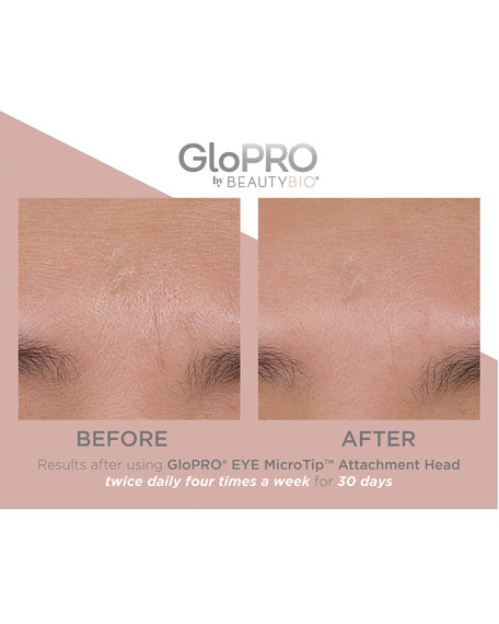 GloPRO® EYE MicroTip™ Attachment Head