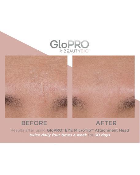 GloPRO® EYE MicroTip™ Attachment Hood