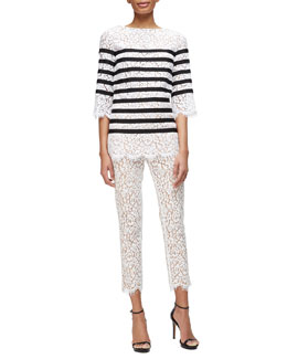 Striped Floral Lace Top & Floral Lace Scalloped Skinny Pants