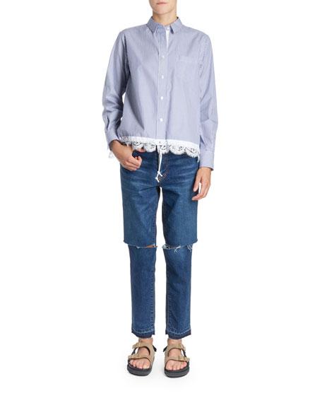 Button-Front Boxy Striped Poplin Shirt w/ Lace Hem