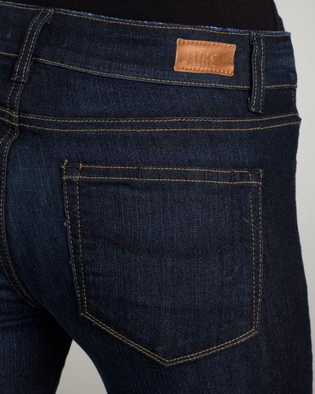 Skyline Fountain Skinny Jeans