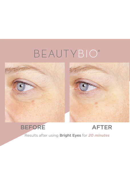 Bright Eyes&#153 Illuminating Colloidal Silver + Collagen Eye Patch