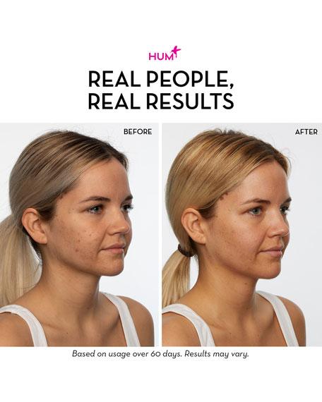 Skin Heroes Pre + Probiotic Clear Skin Supplement